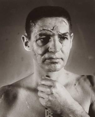 La cara de un portero de hockey antes de la invención de los cascos con máscaras en 1966